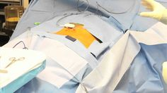 Spinal Cord Stimulator Implant is a procedure that enables  relief to chronic spinal cord  pain.