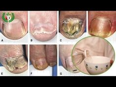 Nails with mushrooms They are usually more common than you think. The fungus on the nail It begins as a white or yellow spot Apple Cider Vinegar, Fungi, Face And Body, Body Care, Punch Bowls, Natural Remedies, Projects To Try, Youtube, Ethnic Recipes
