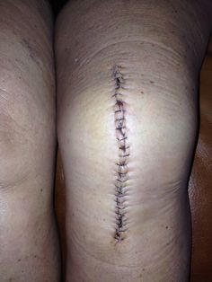 4days post op incision. 26 staples. I feel like I'm dragging a tree trunk around. Lots of pain meds & ice needed.