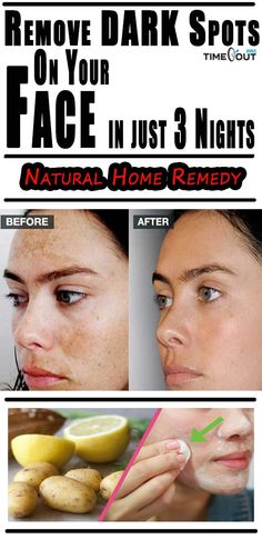 Today we're going to show you how to prepare several recipes that will remove dark spots and stains from your face. The remedies are completely natural, so you don't have to worry about adverse side-effects. Potato and Lemon Juice Mask Ingredients 1 potato Lemon juice (from ½ a lemon) Preparation and use Mash the potato…