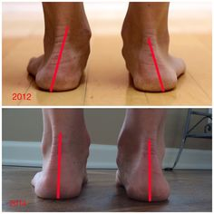 Dr. Nick's Running Blog – Two year long case study demonstrating an increase in arch height from running in minimalist shoes.