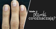 Czy wiesz dlaczego na Twoich paznokciach pojawiły się białe plamki?