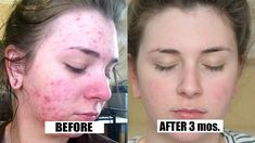 Cystic acne has been a problem for many people since it is caused by cyst; this is why it is also called as cystic acne. It is a much severe and acute condition of acne; cystic acne is nothing but some lumps of inflammation. Acne Scar Removal Treatment, Cystic Acne Treatment, Natural Acne Treatment, Acne Treatments, Homemade Acne Treatment, Bad Acne, Routine, Ga In, Beauty Tips