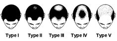 The 5 stages of male pattern balding  #bald