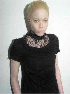 diandra forrest ~ albino model ~ beautiful.