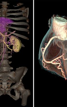 This Machine Can 3-D Scan Your Insides In A Single Heartbeat | Co.Exist | ideas + impact