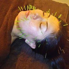 2016/11/26 20:01:37 bodystudiosea.hikaru 美容鍼(電気治療有)とバリエステ(オイルリンパ)のセットの方が、次の日の効果がわかりやすかったみたいです🎵✨😆 シワがなくお顔の血色がよくなったとのことでした💆✨ ありがとうございました🍀 #BodyStudioSea#BodyStudio#Sea#training#トレーニング#加圧トレーニング#パーソナルトレーナー#健康運動指導士#ストレッチ#指圧#ボディメンテナンス#鍼灸#鍼灸師#鍼灸治療#美容鍼#美顔鍼#バリエステ#バリマッサージ#オイルトリートメント#オイルマッサージ#リンパドレナージュ#リンパマッサージ#エステティシャン#健康#美容#完全予約制#大阪市天王寺区#天王寺区#四天王寺#四天王寺前夕陽ヶ丘 #美容