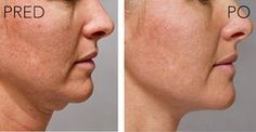 Notice how fast easy-to-perform double chin facial firming massage tackles the problem of dual chin and turkey neck. You too can use facial rejuvenation techniques to tighten baggy skin within days Face Lift Exercises, Double Chin Exercises, Toning Exercises, Workouts, Body Lift Surgery, Radio Frequency Skin Tightening, Natural Face Lift, Facial Rejuvenation, Face Massage