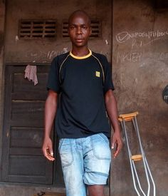 """Mr Odali Chukwunalu who hails from Obiaruku Ukwuani LGA had an accident on the 20th of November 2016 which led to the amputation of one of his leg. He has been surviving by the support of his family and friends as the injury have prevented him from working.  Mr Odali Chukwunalu was a cyclist popularly called """"Okadaman"""" before this unfortunate accident. Even the working stick that he is using to support himself is bad and needs replacement.  Mr Odali Chukwunalu who ought to have undergone a…"""