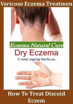 Best Ointment For Eczema. Itchy skin and eczema medication. On the list of various chronic skin disorders, eczema is among the most frequent. Eczema Causes, Eczema Symptoms, Eczema Remedies, Eczema Psoriasis, Face Treatment, Eczema Shampoo, Photos, Top, Toddlers