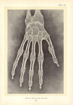"Vintage Medical Print ""X Ray Wrist and Hand"" Anatomical Steampunk Skeleton Bones Print. via Etsy."