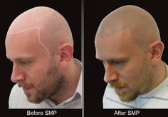 """New York's HIS Hair Clinic fights baldness with needle and ink. HIS Hair Clinic has developed a truly innovative and unique solution for the follicle challenged.  They have been """"redesigning hair loss"""" using a treatment called Scalp Micro-pigmentation (SMP).  The procedure is able to effectively replicate the look of a closely cropped hair (think Vin Diesel or Pitbull) by using ink to mimic tiny, stubble-like follicles."""