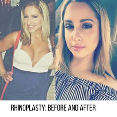 Dr. Wigoda's #Rhinoplasty Patient from #Miami Shares Her Journey On Instagram. Read all about it! http://blog.drwigoda.com/plastic-surgery-rhinoplasty-patient-shares-her-journey-on-instagram