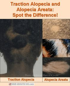 Can traction or friction alopecia from wearing hats, helmets or headphones actually cause hair loss or baldness? Also, five treatment ideas. Natural Hair Regrowth, Androgenetic Alopecia, Scalp Micropigmentation, Hair Restoration, Hair Loss Treatment, Hair Oil, Losing Hair, Thin Hair, Hair Growth