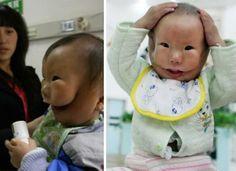 O bebê de duas faces.