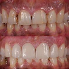 #alsancak #estetik #estetikdishekimi #izmirdishekimi #ivoclar #ivoclarvivadent #emax #esthetic #yaprakporselen #laminateveneer #lamina #gülsokak #smiledesign #gülüştasarımı #pinkesthetic #laserdentistry #ismettalaydis #laminados #odontologiaestetica #cosmeticdentistry #veeners #dentistizmir #dentaltreatment by dentalstudioizmir Our Cosmetic Dentistry Page: http://www.myimagedental.com/services/cosmetic-dentistry/ Google My Business: https://plus.google.com/ImageDentalStockton/about Our Yelp…