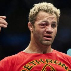 Josh Koscheck after his fight with GSP