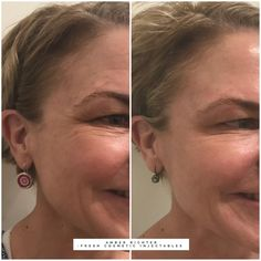 Targeting crows feet with anti wrinkle injections. Treatment is recommended ever...