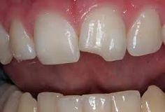 Need Porcelain Veneers? Century City Dental Group provides reliable dentists for Porcelain Veneers needs. Dental Implant Procedure, Dental Implants, Dental Hygienist, Health Remedies, Home Remedies, Homeopathic Remedies, Natural Remedies, Mouth Problems, Dental Bonding