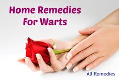 home remedies for warts Home Remedies For Nausea, Home Remedies For Skin, Home Remedy For Cough, Skin Care Remedies, Natural Home Remedies, Warts On Hands, Warts On Face, Best Wart Remover, Home Remedy Teeth Whitening