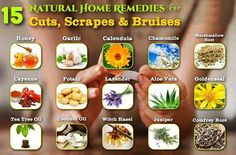 Natural Remedies for Cuts, Scrapes and Bruises #NaturalRemedy #SkinCare