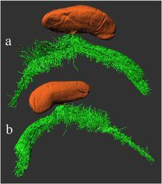 CRUSTACEA (Crustáceo) - Rhizocephala, uma espécie de craca parasita de outros Crustáceos. O corpo deste Crustáceo divide-se em Externa (em laranja) com função reprodutiva e Interna (em verde) cuja função principal é a nutrição.  CRUSTACEA (Crustacean) - Rhizocephala, a species of parasitic barnacle of other Crustaceans. The body of this Crustacean is divided into External (in orange) with reproductive function and Internal (in green) whose main function is nutrition.