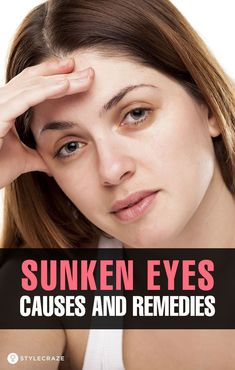 Sunken Eyes – Causes And Remedies Sunken Eyes – Causes And Remedies: Sunken eyes mainly appear with aging and can happen due to many reasons. These reasons can be external, like stress and tension, or internal, like lack of sleep,… Continue Reading → Beauty Advice, Beauty Hacks, Sunken Eyes, Dry Eyes Causes, Aloe Vera Face Mask, Healthy Eyes, Eyes Problems, Skin Tag, Puffy Eyes