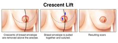 Mastopexy and the Crescent Lift #CrescentLift #Mastopexy