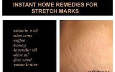 Instant Home Remedies For Stretch Marks