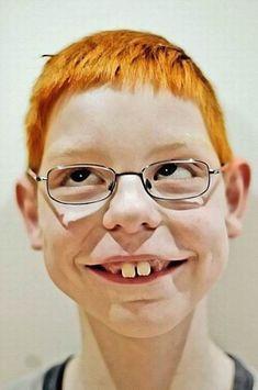 Smiling redhead buck-tooth boy #funnyface
