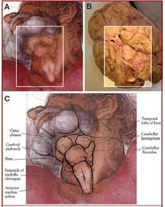 Concealed Neuroanatomy in Michelangelo's Separation of Light From Darkness in the Sistine Chapel