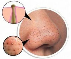 Getting rid of Blackheads: Get rid of Blackheads with fine salt and soda. Take gel facial wash, mix with tablespoon of baking soda and tablespoon of salt. Apply to damp skin with cotton pad, leave for 5 mins.