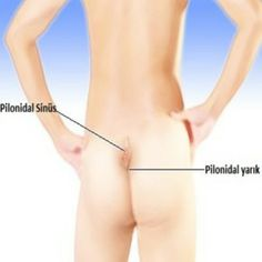 Effective Home Remedies for Pilonidal Cysts