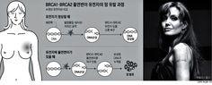 쇼셜닥터스: 졸리도 두려워한 BRCA변이 유전자...검사 똑 받아야 되나.