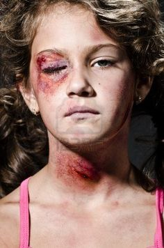 Causes of child abuse? plzzz help?