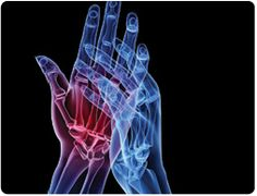 Extreme Arthritis: Learn more http://www.stemcell.life/stem-cell-therapy.html