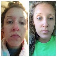 "Meredith is a PREFERRED CUSTOMER and this is what she had to say about her results using the Unblemish regimen:  ""So these are really ugly close ups but I felt compelled to share my skin transformation in hopes of helping someone. I've struggled with acne and dryness for a reeeeeally long time and started using Rodan + Fields UNBLEMISH 6 weeks ago. I cannot believe how soft and smooth my face is. I've never been able to post a pic without makeup before but here it is! I highly recommend this…"