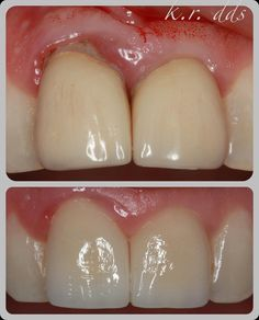 all kinds of exudate here.  PFMs sectioned and removed ST laser under-contoured temps on 8 and 9 and eventually new FPCs. all perio issues resolved midline IDP still healing 3 months later. we like.  #pearldistrict #dentistry #cosmeticdentistry by rafiadental Our Cosmetic Dentistry Page: http://www.myimagedental.com/services/cosmetic-dentistry/ Google My Business: https://plus.google.com/ImageDentalStockton/about Our Yelp Page: http://www.yelp.com/biz/image-dental-stockton-3 Our Facebook…