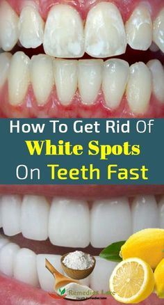 Watch This Video Fantasting All-Natural Home Remedies To Whiten Teeth Ideas. All Time Best All-Natural Home Remedies To Whiten Teeth Ideas. Teeth Whitening Methods, Natural Teeth Whitening, Whitening Kit, Get Whiter Teeth, Receding Gums, Healthy Teeth, Beauty Tips, Beauty Hacks, Beauty Ideas