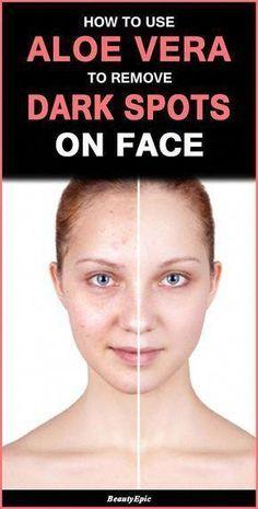 How to Use Aloe Vera for Dark Spots on Face #FirmingEyeCream Eyeshadow Basics, Best Eyeshadow, How To Grow Eyebrows, How To Apply Makeup, Dark Spots On Face, Brown Spots, Firming Eye Cream, Skin Moles, Aloe Vera Face Mask
