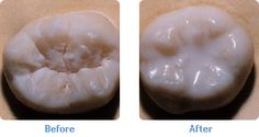 sealants help prevent decay on biting surfaces!