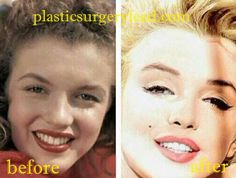 Post-surgery women reveal the whole truth about the most popular plastic surgery procedures -- from (ow!) recovery to (omg! Marilyn Monroe Portrait, Marylin Monroe, Marilyn Monroe Photos, Marilyn Monroe Plastic Surgery, Eyelid Surgery, Nose Surgery, Marilyn Monroe Birthday, Celebrity Surgery, Celebs Without Makeup