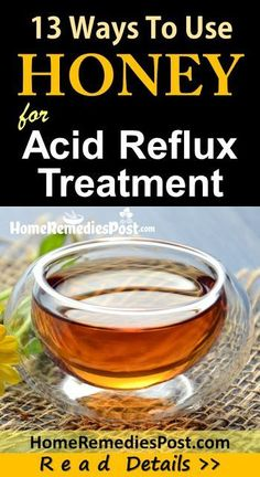 More than 60 million Americans have heartburn and also acid reflux a minimum of once a week. Attempt these heartburn natural remedy for quick heartburn alleviation. #heartburntips Acid Reflux Natural Remedies, Natural Home Remedies, Remedy For Acid Reflux, Recipes For Acid Reflux, Home Remedies For Gerd, Natural Cure For Heartburn, Acid Reflux Treatment, Honey, Medicinal Plants
