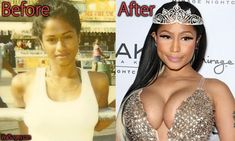 Nicki Minaj Plastic Surgery, Before and After Pictures #nickiminaj #implants #buttimplant #breastimplant lmao this is so not her in the before