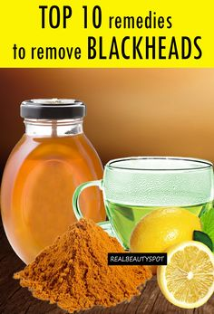 Top 10 Remedies to Remove Blackheads Top ten remedies to get rid of blackheads at home using lemon, turmeric, green tea, honey and other kitchen ingredients. Blackhead Remedies, Blackhead Remover, Beauty Care, Beauty Skin, Beauty Secrets, Beauty Hacks, Diy Beauty, Beauty Products, Facial Care