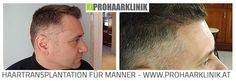 Haartransplantation Frauenfeld - Vorher Nachher
