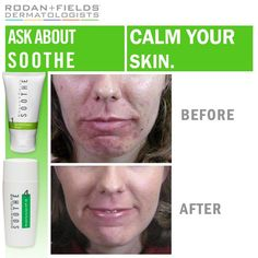 Rodan And Fields Before And After | Treating Rosacea, Eczema and Psoriasis | Steliotes Face Rx www.lmccain.myrandf.com