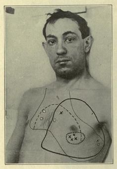 """""""Distribution of heart murmurs in a man, age 33.""""Monographic Medicine. 1917."""