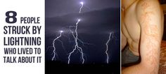 Read these true stories of people who survived lightning strikes.