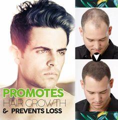 ESSENTIAL™- (NEW 2020)- Organic Hair Darkening Solution
